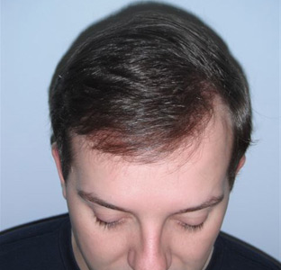 An after photo showing hair restoration for a patient of DiStefano Hair Restoration Center in Worcester, MA