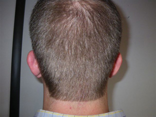 A picture of a patient before undergoing hair restoration at DiStefano Hair Restoration Center in Worcester, MA