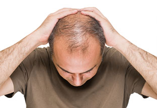 A man struggling with hair loss going to the DiStefano Hair Restoration Center in Worcester, MA