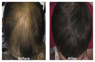 A before and after photo of a patient after hair restoration procedures at DiStefano Hair Restoration Center in Worcester, MA
