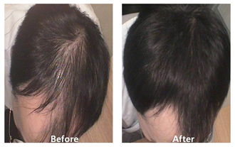 A before and after picture of a patient after hair restoration procedures at DiStefano Hair Restoration Center in Worcester, MA