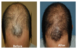 An image of a patient showing before and after hair restoration procedures at DiStefano Hair Restoration Center in Worcester, MA