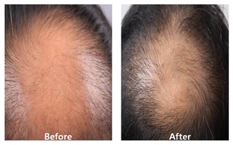 A picture of a patient showing before and after hair restoration procedures at DiStefano Hair Restoration Center in Worcester, MA