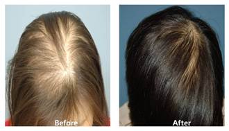 A before and after image of a patient after hair restoration procedures at DiStefano Hair Restoration Center in Worcester, MA