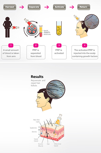 An infographic for PRP, available at DiStefano Hair Restoration Center in Worcester, MA