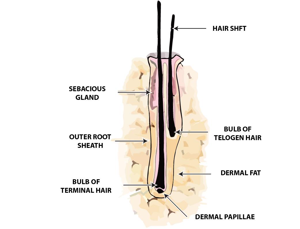 Hair Loss Restoration Techniques
