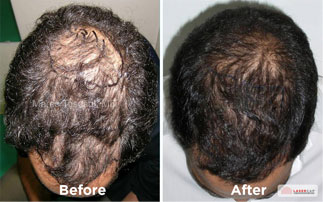 Before-After : low light laser therapy side effects - www.canuckmediamonitor.org
