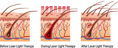 An infographic showing the phases before and after laser light therapy at DiStefano Hair Restoration Center in Worcester, MA