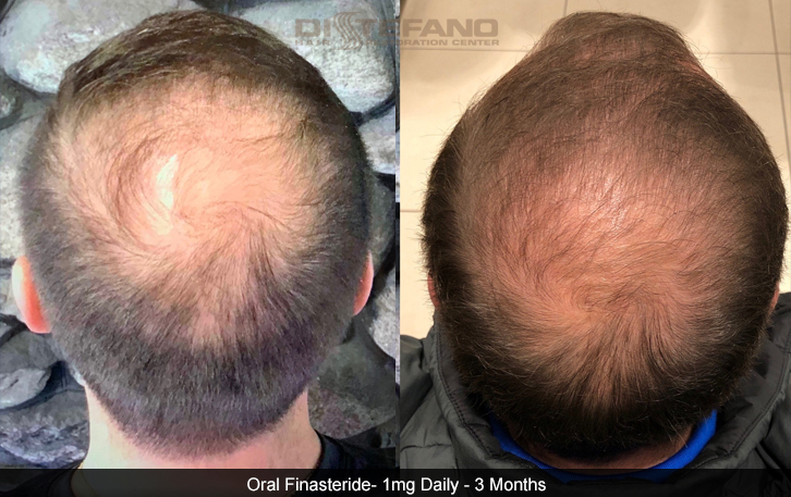 Propecia Finasteride Hair Transplants Hair Loss Restoration In Ct Ma Ri Nh