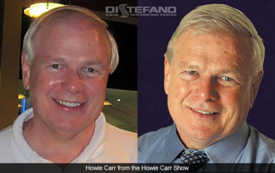 Howie Carr Before and After DiStefano Hair Transplant