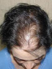female hair loss problems