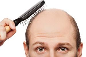 finding hair restoration surgeon