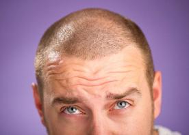 hair restoration scars