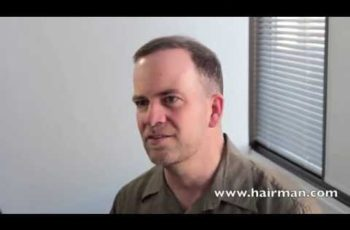 Individual Graft Technique™ (IGT)   Client Testimonial